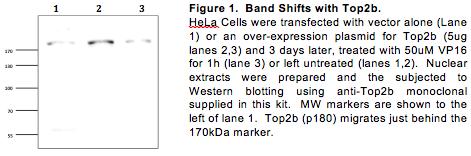 TG2011-5 Monoclonal Topo II Beta Antibody